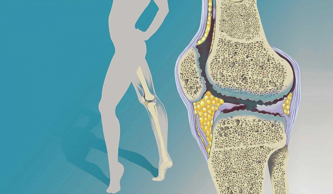 αρθρίτιδα γόνατος ντούσης διονύσιος ορθοπαιδικός άλιμος