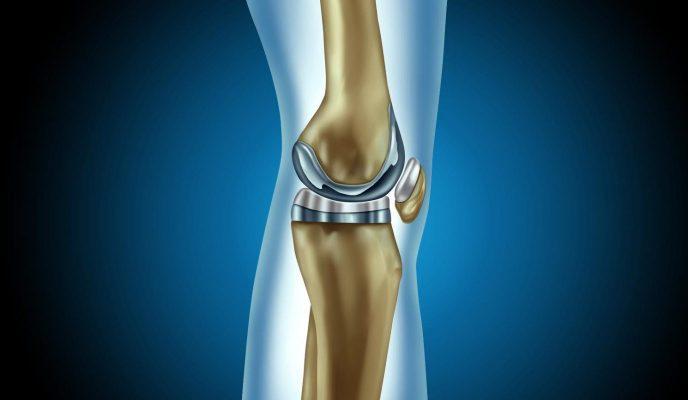αρθροπλαστική γόνατος ντούσης διονύσιος χειρουργός ορθοπαιδικός άλιμος