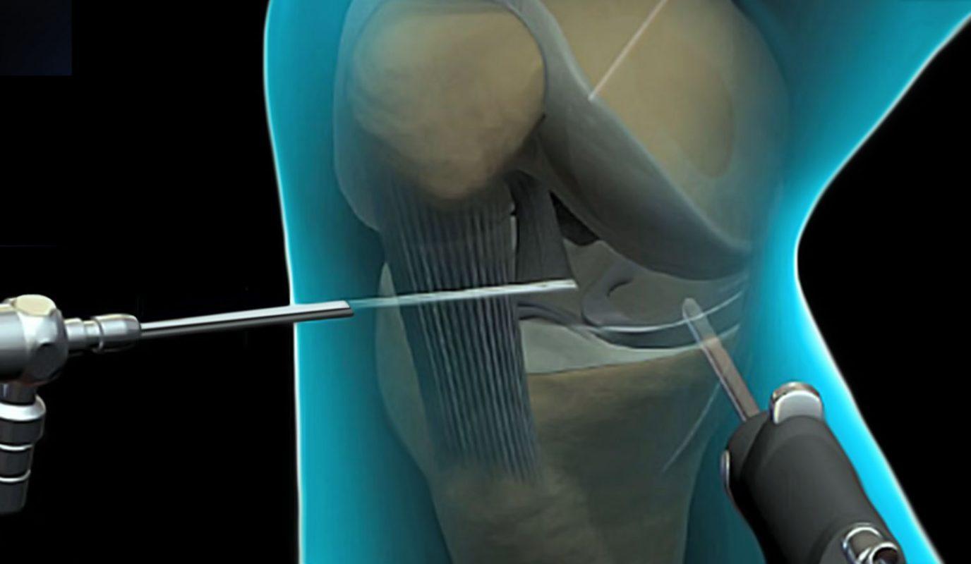 βλάβη χόνδορυ ντούσης διονύσιος χειρουργός ορθοπαιδικός άλιμος
