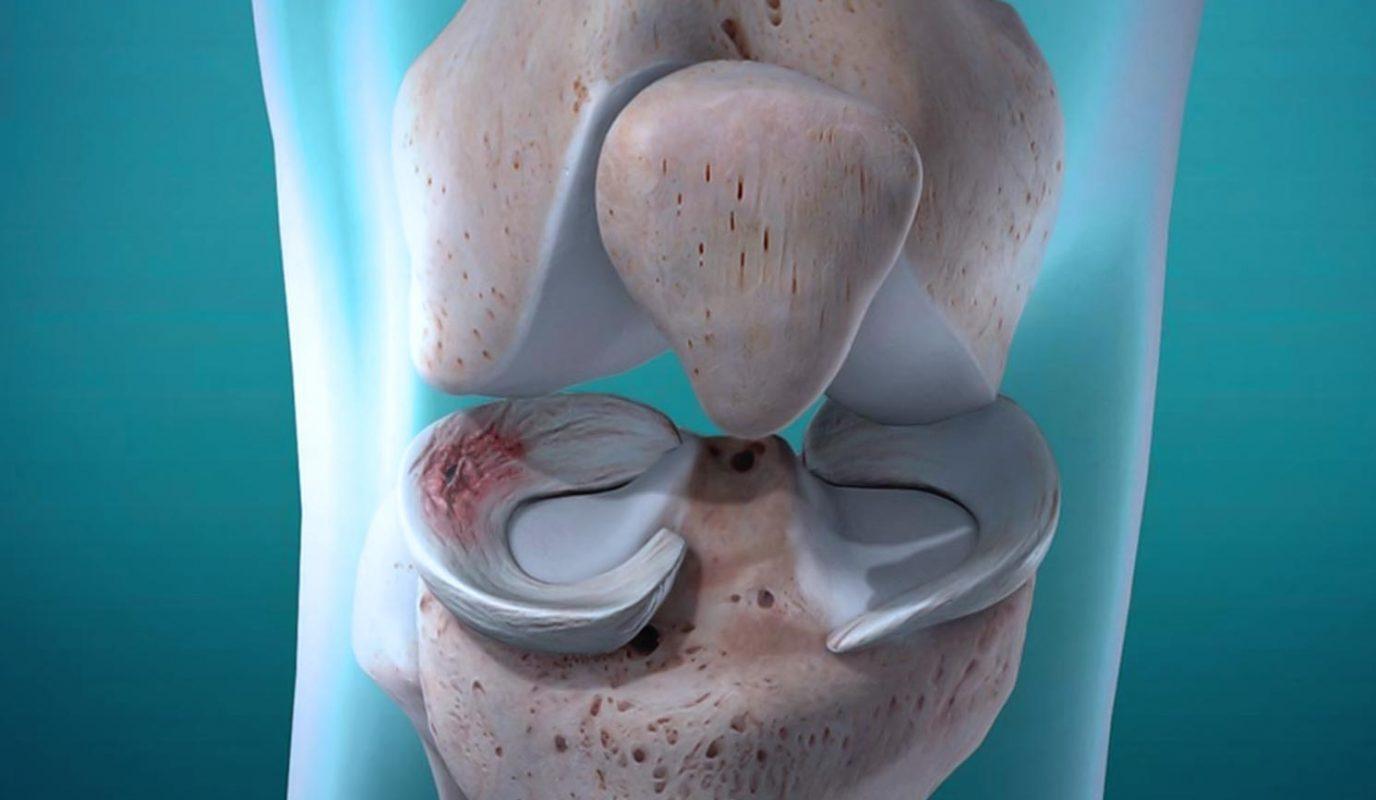 ρήξη μηνίσκου ντούσης διονύσιος χειρουργός ορθοπαιδικός άλιμος