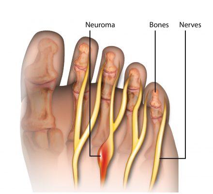 νεύρωμα morton χειρουργός ορθοπαιδικός ντούσης διονύσης άλιμος